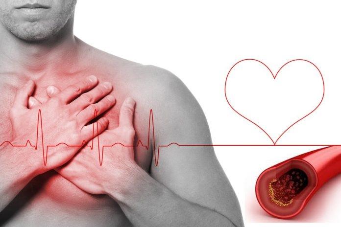 Colesterol alto atinge 15% das mulheres brasileiras