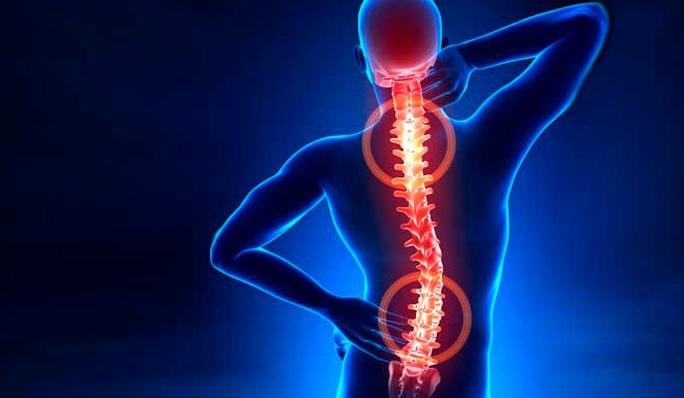 Hérnia de disco: saiba como prevenir e tratar